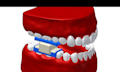 Zahnarzt-Zukunft: CNC-Fräse statt Bohrer im Patientenmund (Video)