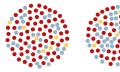 Masern: Simulation zeigt Einfluss der Impfmüdigkeit