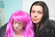 School orders terminally ill girl with alopecia to remove wig