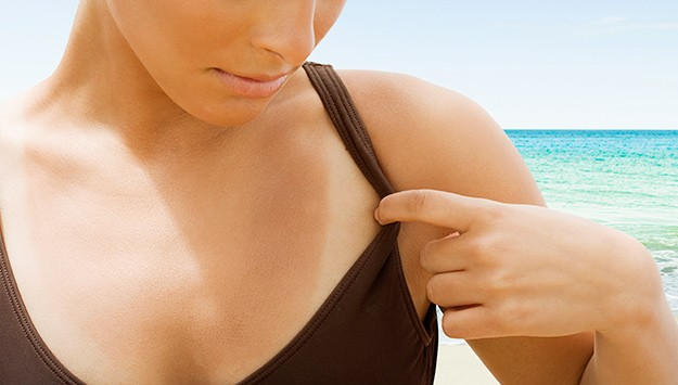 7 Awkward Summer Beauty Woes, Solved