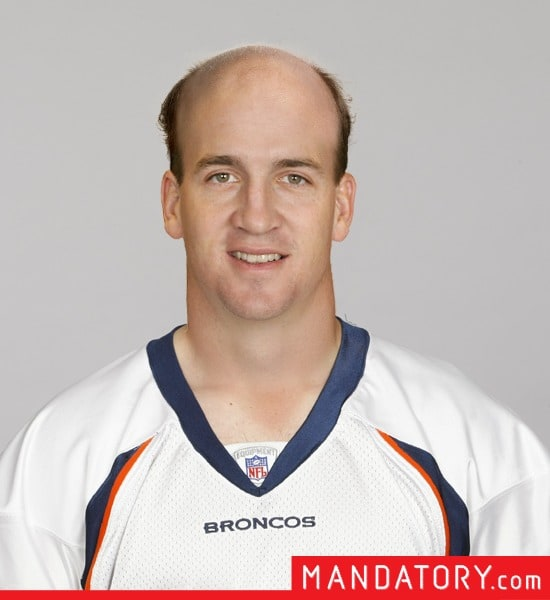 bald-quarterbacks-04-1.jpg