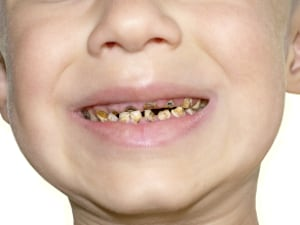 Dentists Say Sugar Free Drinks And Lollies Still Bad For Teeth