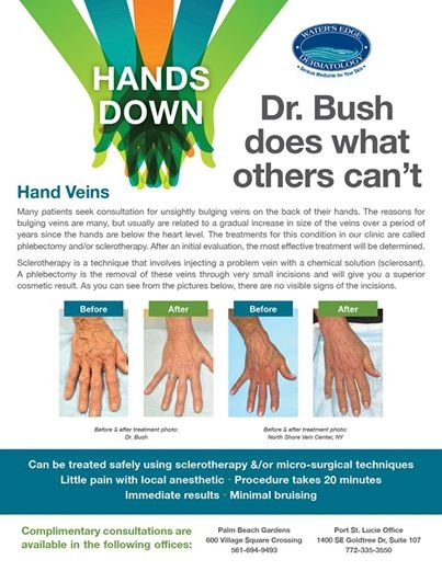 Did you know Water's Edge offers treatment for those bulging veins on the backs of hands? Dr. Bush of Vein Experts is a leading expert in the field, and you can be treated by him in our offices.