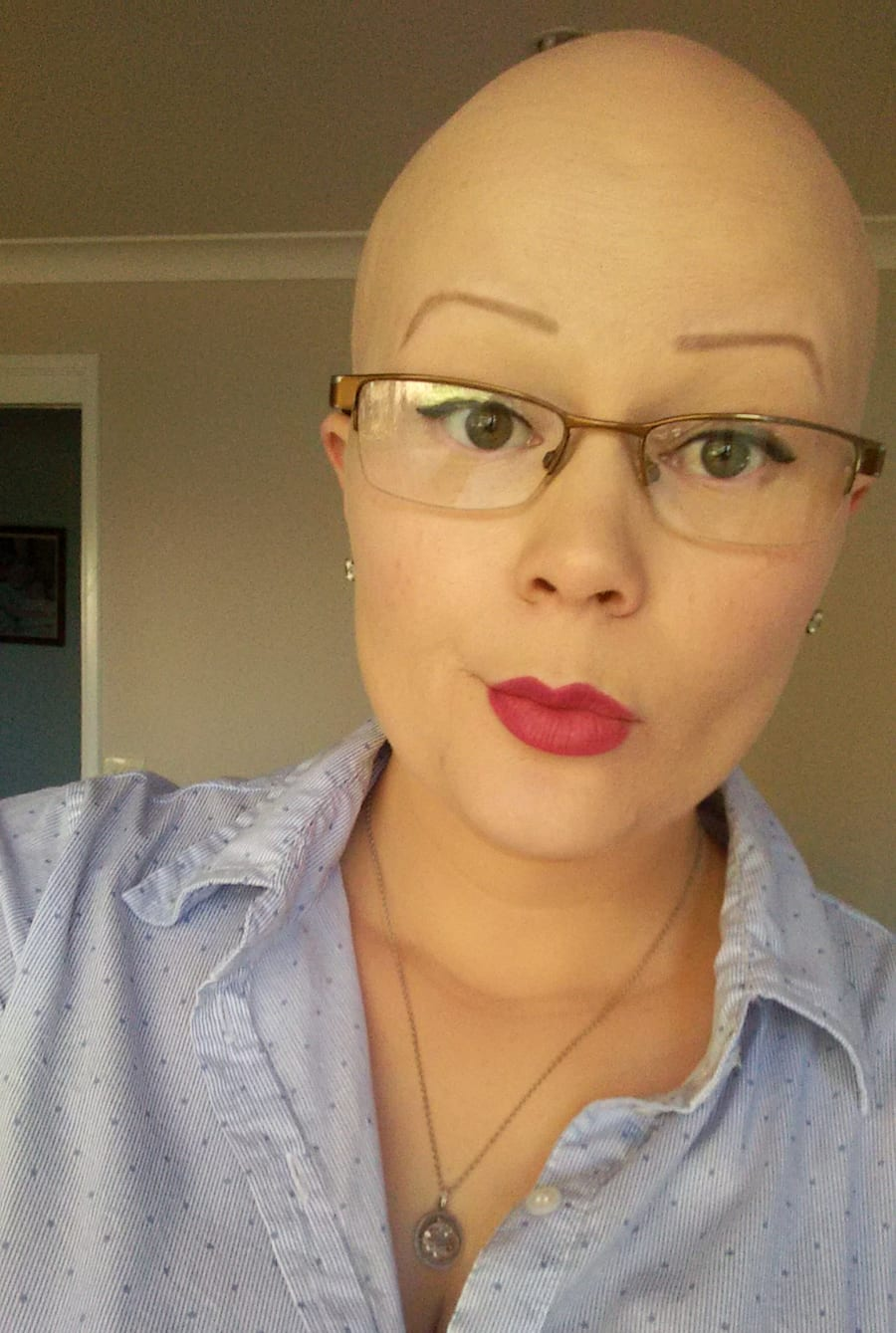 here s what it feels like to lose your hair at five years old supplied acceptance meant being honest her condition