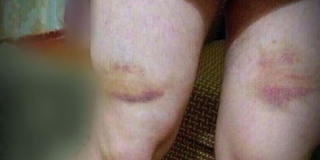 Cecenia: gay torturati e rinchiusi in campi di rieducazione