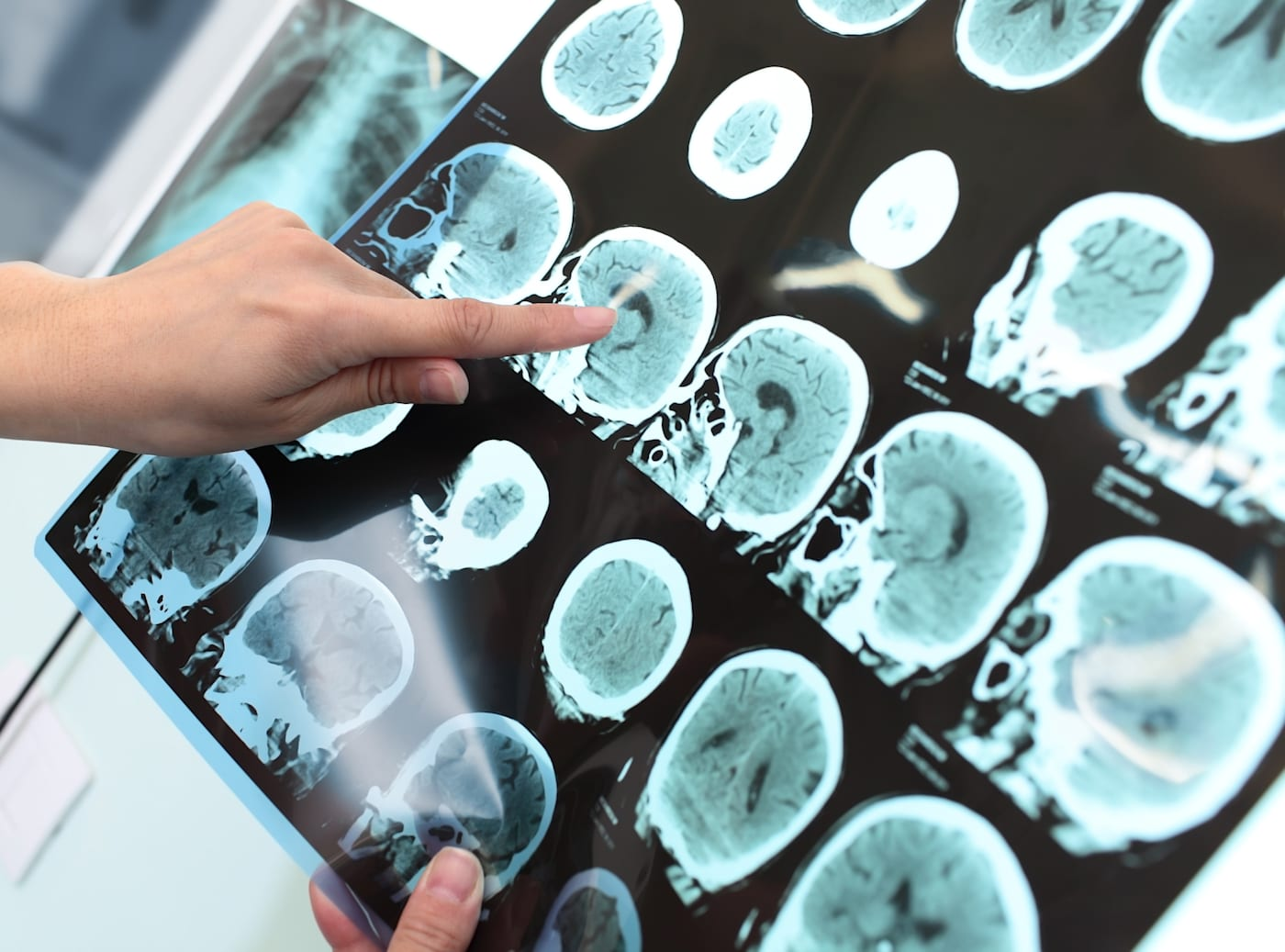 Brain glucose levels can predict someone waking from a coma