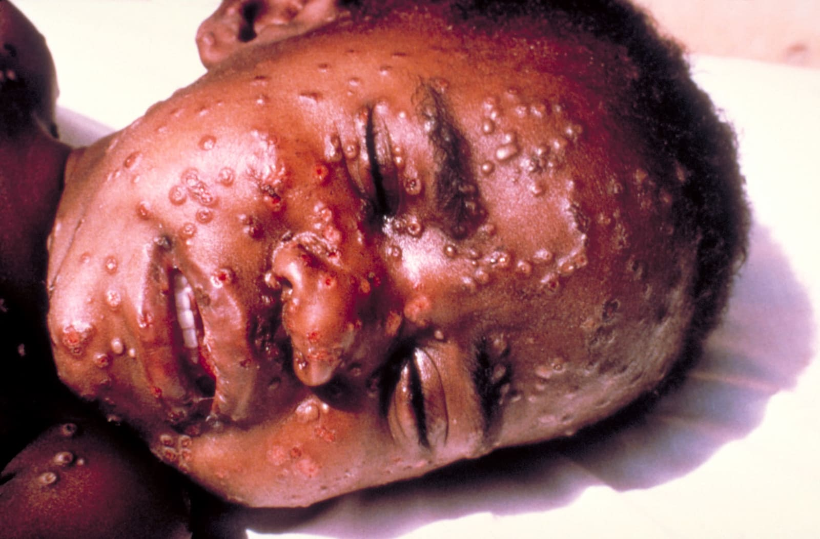 Boy With Smallpox