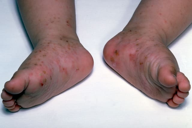 Kids Scabies - KidsHealth