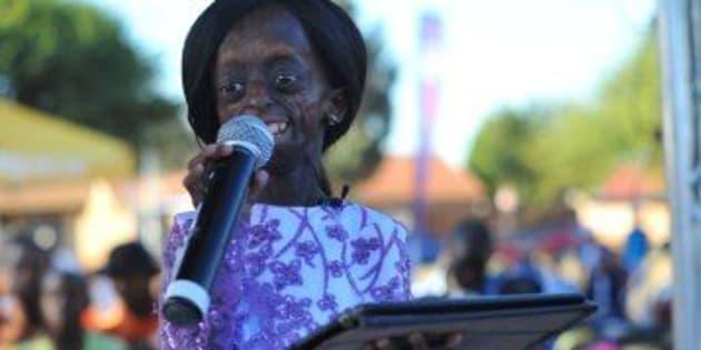 È morta Ontlametse Phalatse, la prima donna nera affetta da progeria