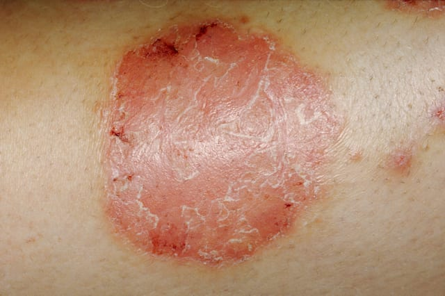 Psoriasis, chronic skin disease w/itchy scaly patches
