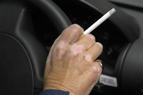Smoking in family cars to be banned