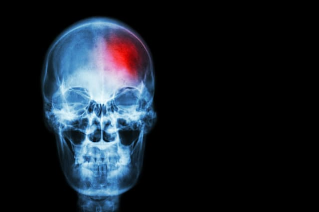Stroke ( Cerebrovascular accident ) . film x-ray skull of human with red area ( Medical , Science and Healthcare concept and bac