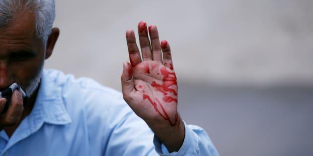 Azadi Resurrected: A Referendum In Blood