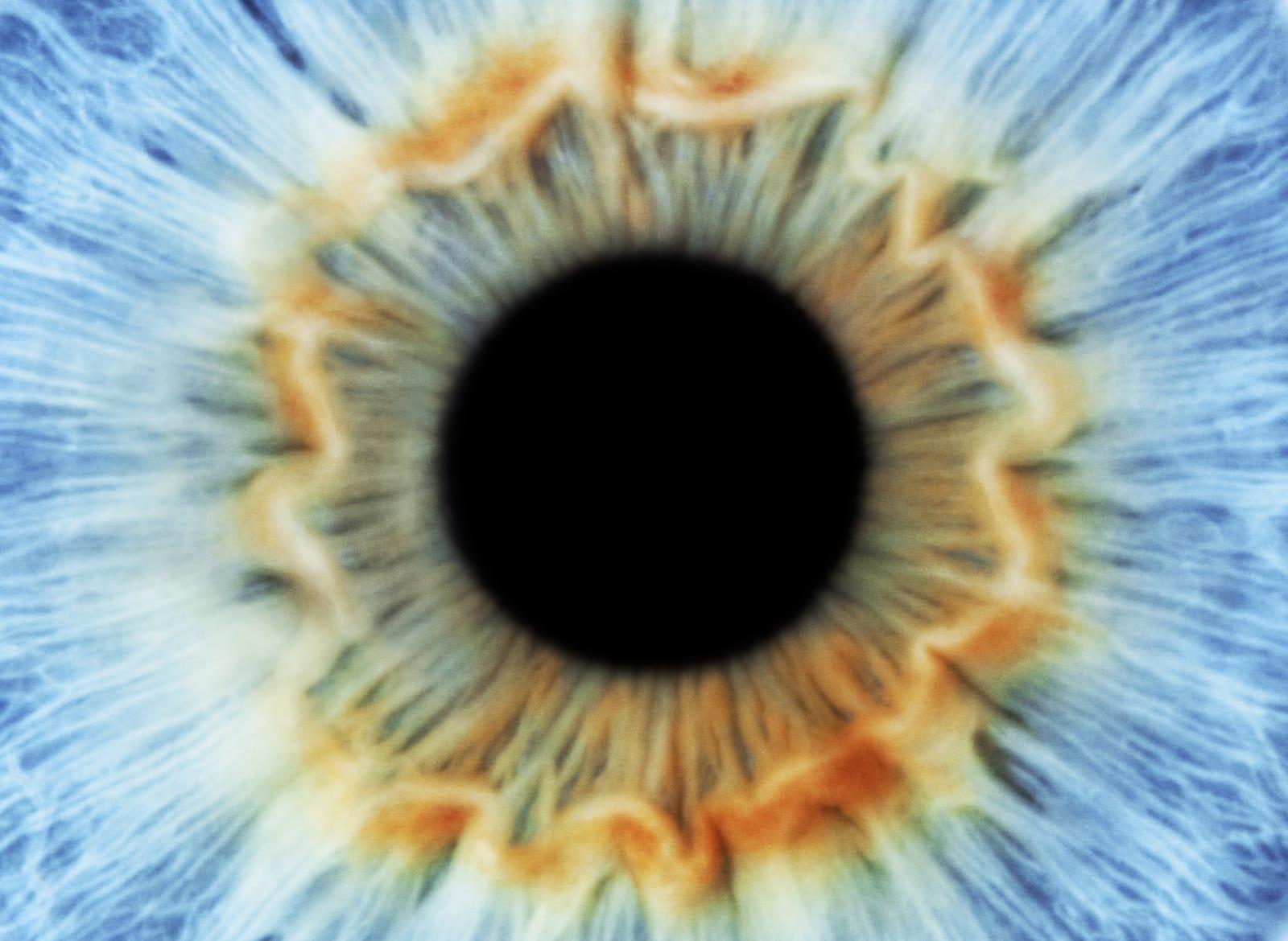 Artificial iris responds to light like real eyes