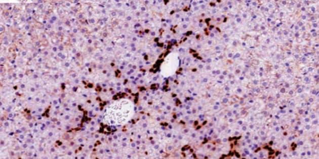 Resultado de imagen de Las células madre del hígado