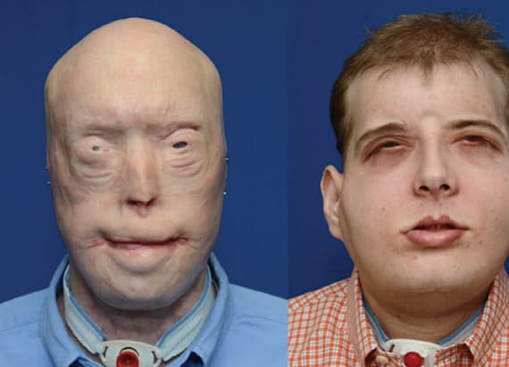 Man thriving after extensive face transplant
