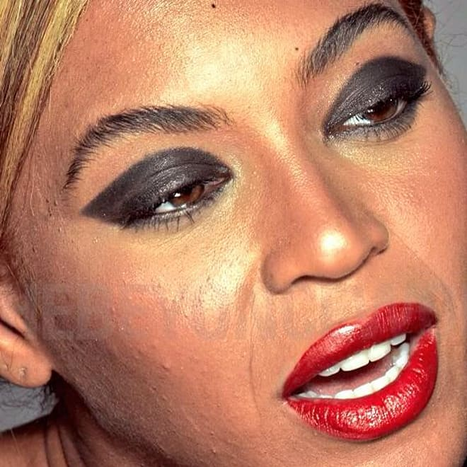 Beyonce leaked L'Oreal photos acne