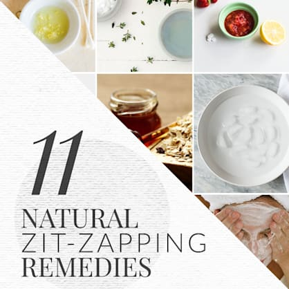 11 natural zit-zapping home remedies