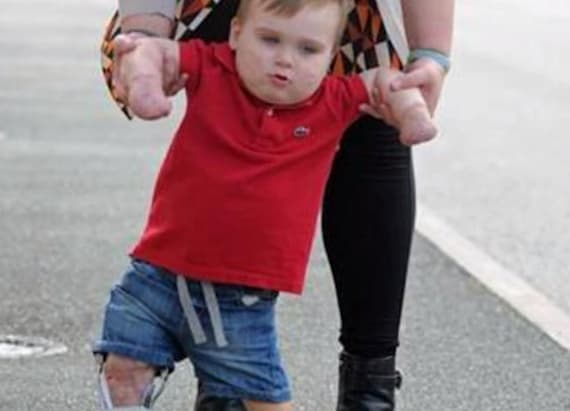 Child battling meningitis learns to walk