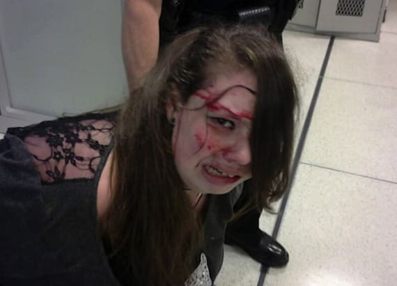 Cancer patient sues TSA after bloody scuffle