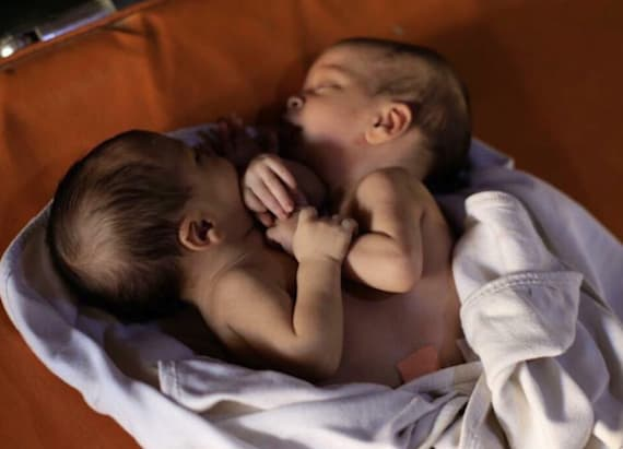 Conjoined twins tragically die in Syria