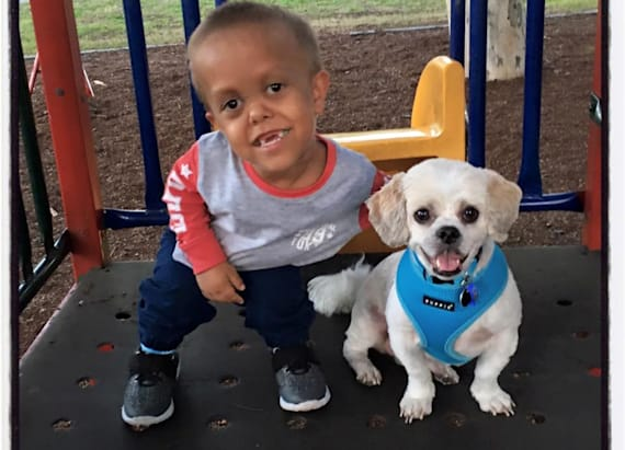 Boy with dwarfism befriends dog with dwarfism