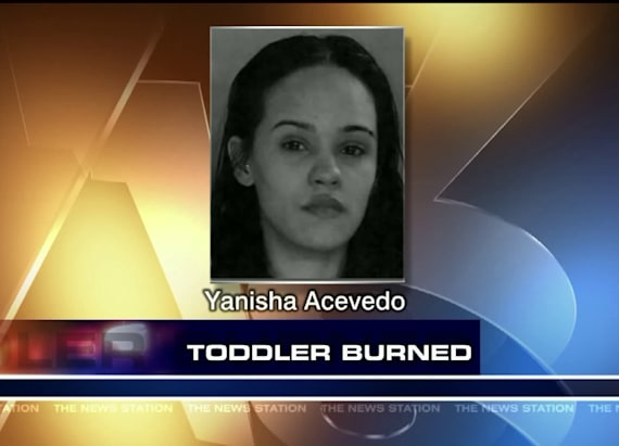 Scranton woman charged after toddler severely burned