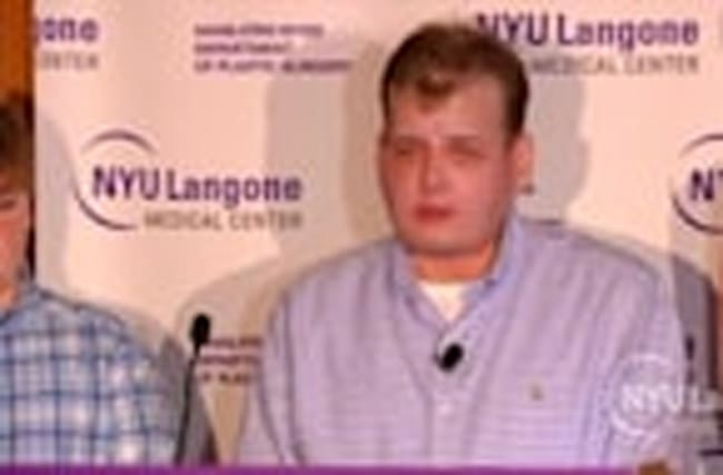 "Face transplant recipient ""feeling great"" one year later"