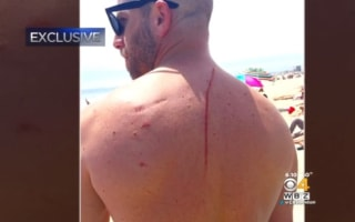 Shark attack saves man's life after cancer discovered