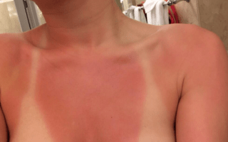 Miley Cyrus tweets painful looking sunburn photo from Florida