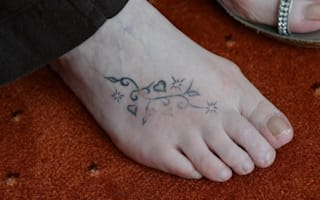 Scottish woman 'nearly loses foot' after £25 Turkey holiday tattoo