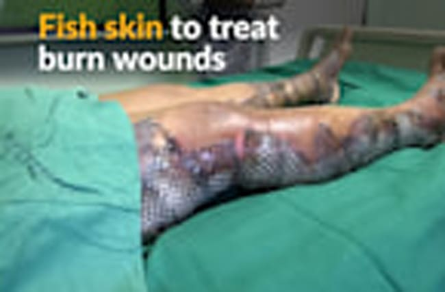 Fish skin provides relief for Brazil's burn victims