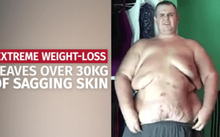 Extreme weight loss leaves man with 30kg of sagging skin
