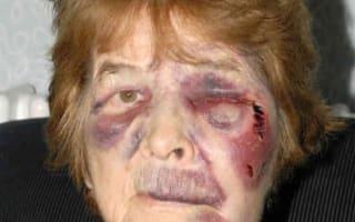 Pensioner badly hurt in bag snatch