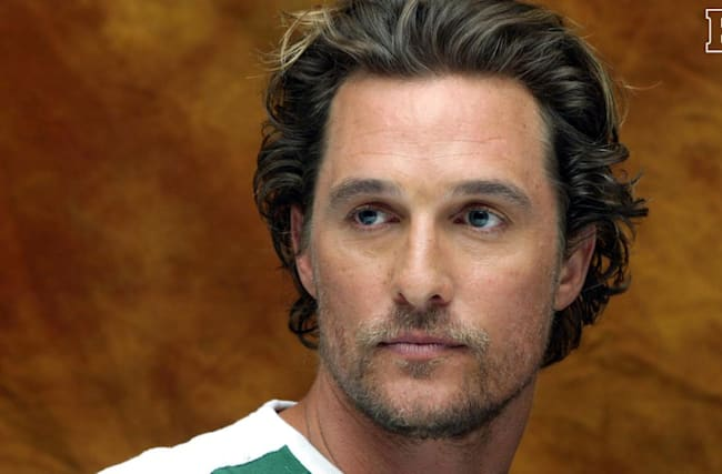 Matthew McConaughey was balding until found a miracle cure