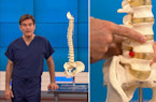 Rob Gronkowski -- Dr. Oz Explains Back Injury ... Here's Why He Needs Surgery