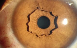Rare eye condition causes ripples in irises