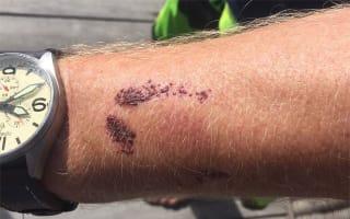 Richard Branson 'bitten by a shark' in the Cayman Islands