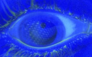 Airbag deployment left mesh imprint on crash victim's eyeballs