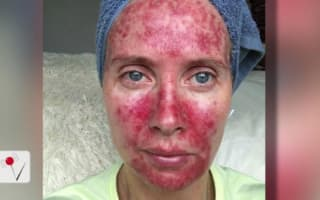 Woman shares scary selfies involving tanning beds