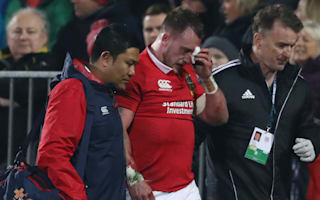 Hogg to miss remainder of Lions tour due to facial injury