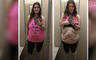 Woman who lost 13 stone shows off excess skin