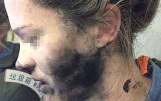 Plane passenger badly burnt when headphones explode mid-air
