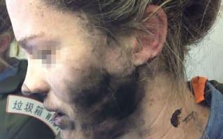 Plane passenger badly burnt when headphones explode mid-air