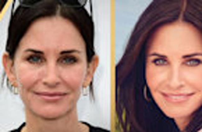 Courteney Cox Gets Her Fillers Dissolved: Beverly Hills Plastic Surgeon Breaks Down How It's Done