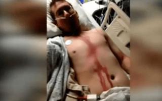 Man survives lightning strike to head on camping trip