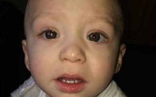 Dad diagnoses one-year-old's cancer from a photo