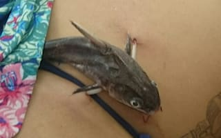 Tourist has CATFISH removed from stomach