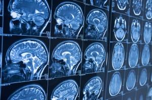La inteligencia artificial es capaz de detectar Alzheimer diez años antes de los primeros síntomas