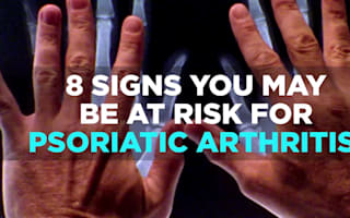 8 signs you may be at risk of psoriatic arthritis